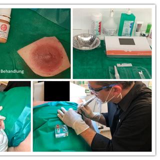 Arebitsplatz bei einer Areola-Mikropigmentierung