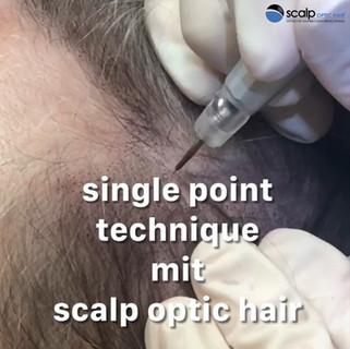 single point technique mit scalp optic hair