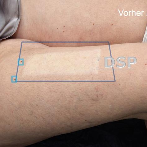 SOH HP DSP VN 0009-01 vorher 7. BH.jpg