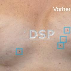 SOH HP DSP VN 0016-01 vorher 3. BH.jpg