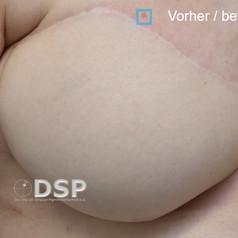 SOH HP DSP VN 0021-01 vorher 2. BH.jpg