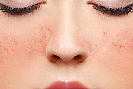 Spider Veins on the Face