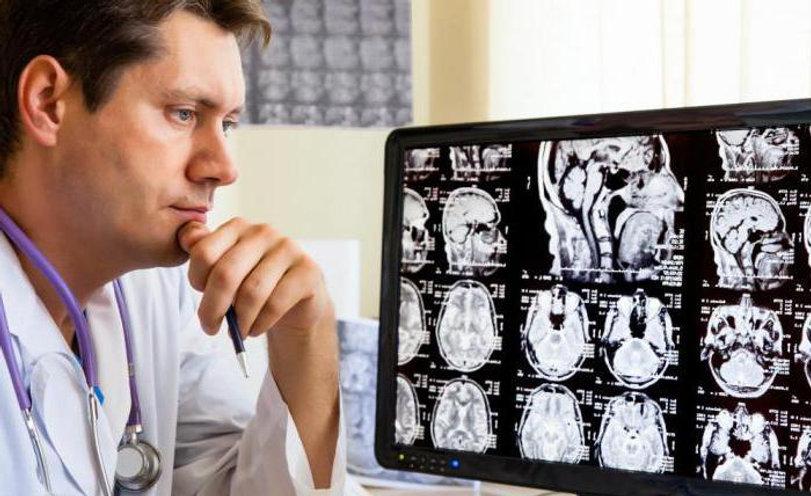 эпилептолог за работой