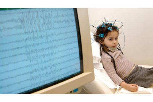 детский эпилептолог диагностика