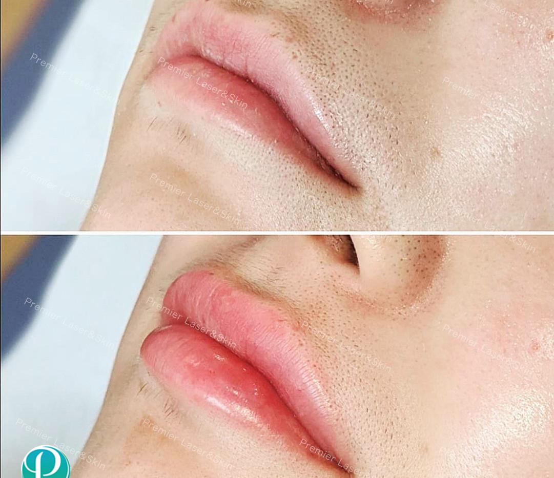 玻尿酸嘴巴1-logo+水印.jpg
