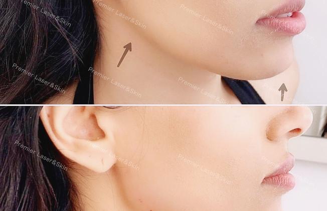 玻尿酸下颌线-logo+水印 (1).jpg