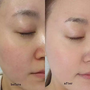 mesotherapy b&a (2).JPG