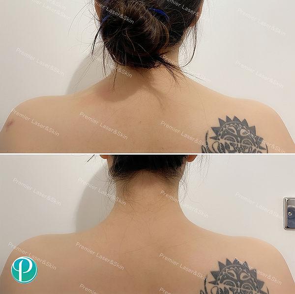 BOTOX肉毒素瘦肩针-logo+水印.jpg