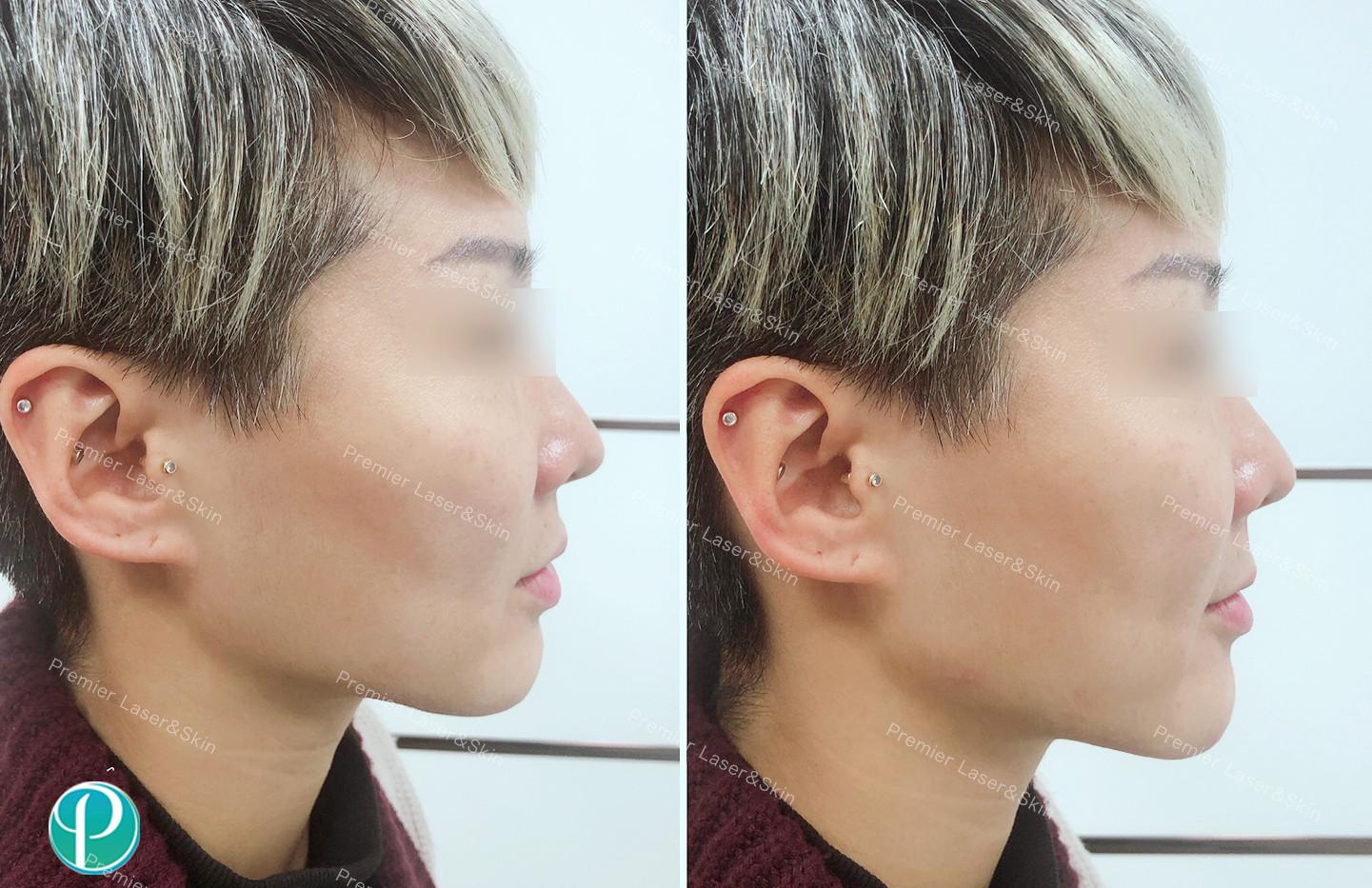 玻尿酸下颌线-logo+水印.jpg