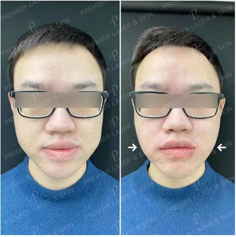 颊脂垫瘦脸效果