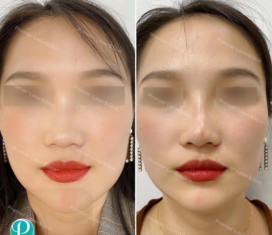 玻尿酸鼻子1-logo+水印.jpg