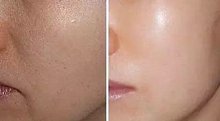 mesotherapy b&a (1).JPG