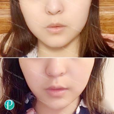 BOTOX肉毒素瘦脸针-logo+水印.jpg