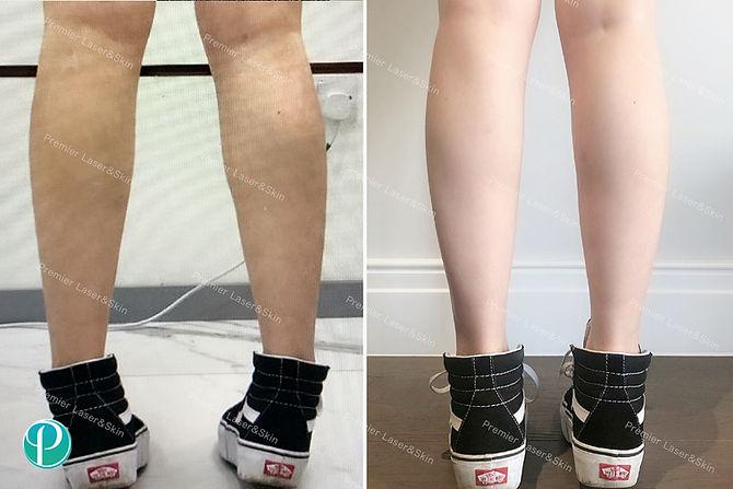 BOTOX肉毒素瘦腿针-logo+水印.jpg