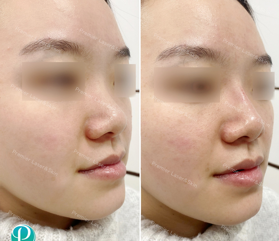 玻尿酸鼻子-logo+水印.jpg