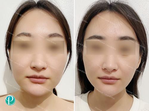 BOTOX肉毒素瘦脸针1-logo+水印.jpg