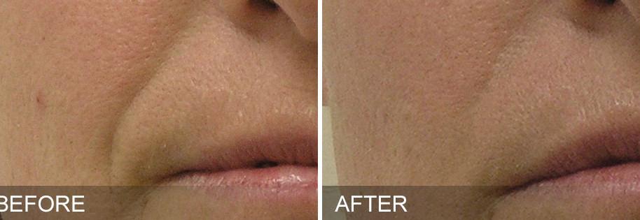 before-after-NasolabialFolds.jpg