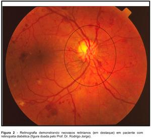 Retinografia demonstrando neovasos retinianos (em destaque) em paciente com retinopatia diabética