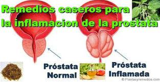 medicinas caseras para la prostata inflamada