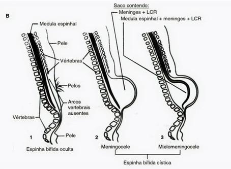 Espinha Bífida: Como a Fisioterapia pode ajudar na melhora da condição do paciente