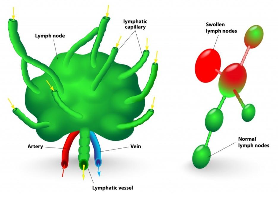 cancer lymph nodes