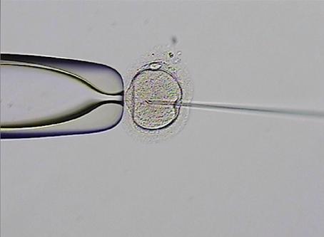ICSI: el arte de inyectar un espermatozoide a un óvulo