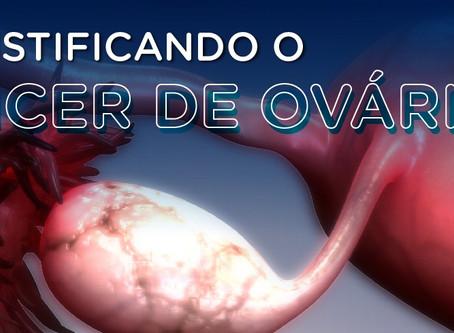 Infográfico: desmistificando o câncer de ovário