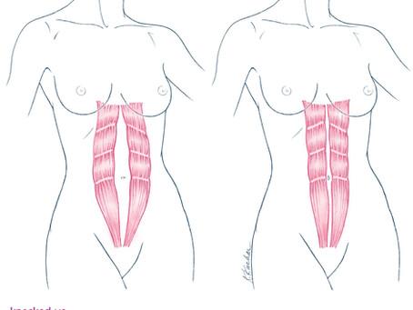 Diastasis Recti: Separación abdominal en las embarazadas