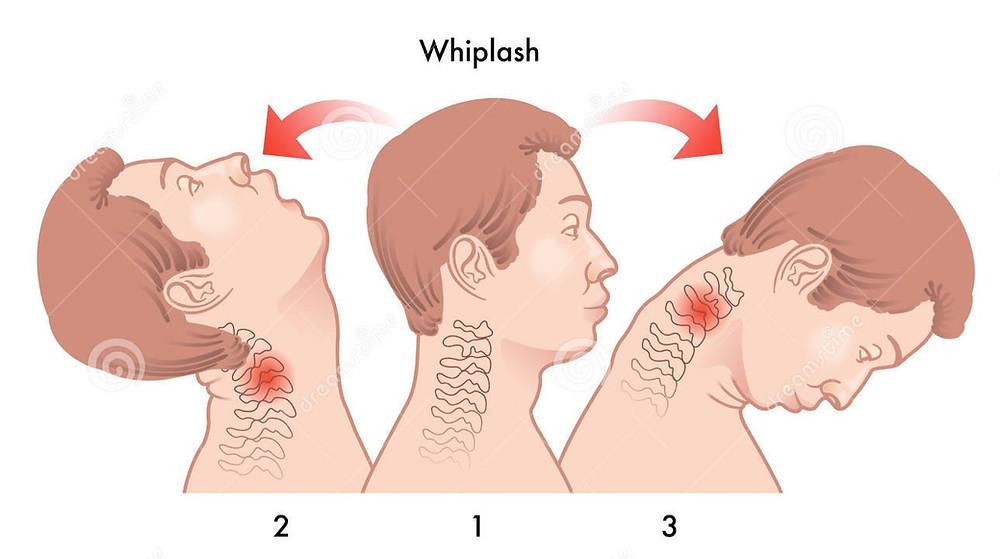 whiplash coup du lapin suite à un AVP