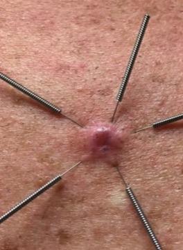 one MC example treatment
