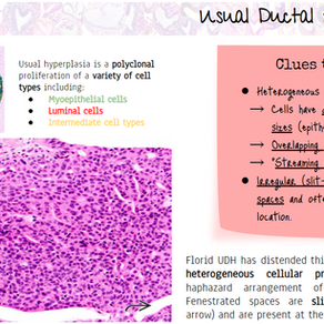 Usual Ductal Hyperplasia (UDH)