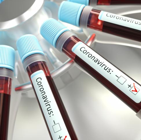 Coronavirus (COVID-19) Response Plan