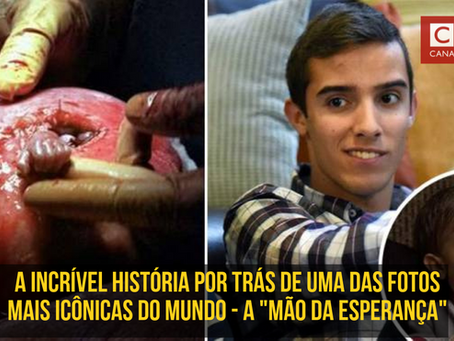 """A história de Samuel Armas: A """"Mão da esperança"""""""