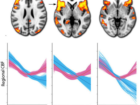 Normative sex differences in cerebral perfusion