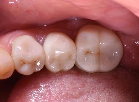 奥歯のインプラント