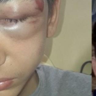 A Bondy un jeune de 14 ans tabassé par la police lors d'une interpellation