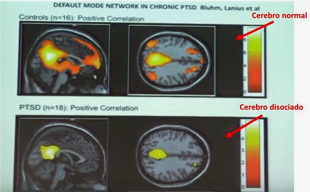 Las partes iluminadas en rojo denotan actividad cerebral que en el cerebro disociado no aparece