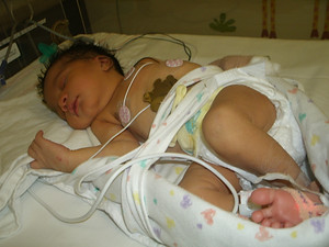 Baby Girl born with complications, Mommie was by her side!