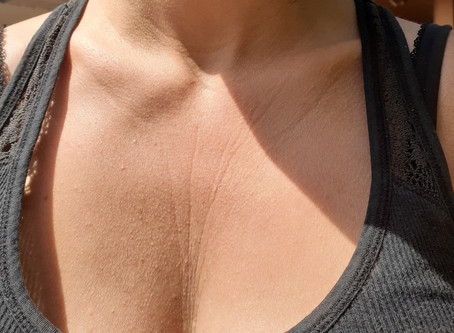 How I Finally Got Rid of Deep Lines & Wrinkles on My Chest & Neck