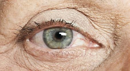 Degeneração Macular Relacionada à Idade (DMRI)