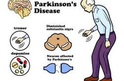 Predicting the presence of Neurodegenerative diseases. A case study of Parkinson's disease.