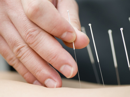 Evidence That Dry Needling is the Intent to Bypass Regulation to Practice Acupuncture in the US