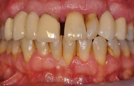 La relación entre los dientes y el corazón que debes conocer