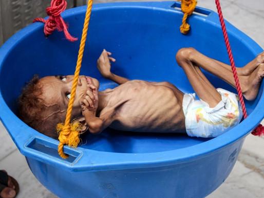 Yémen : un cri d'alarme international