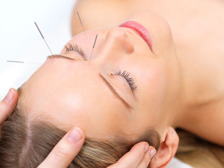 How Acupuncture Treatments Rejuvenate Both Body & Mind