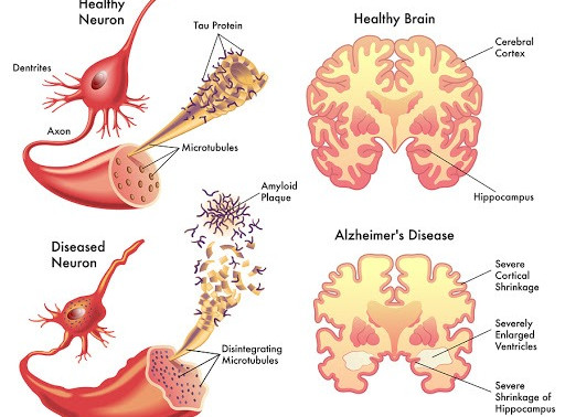 What is Alzheimer's and how does music therapy alleviate the stages of Alzheimer's Disease?