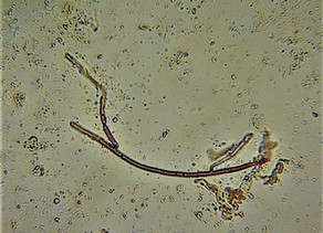 Soils need all kinds of fungi, not just mycorrhizal types. Here are some reasons why.