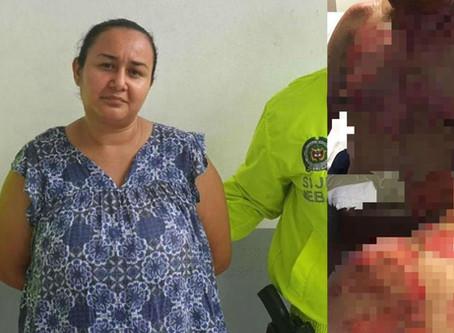 Mujer en Barranquilla, le prendió fuego al marido