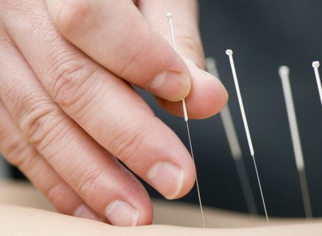 I thought there was only one kind of acupuncture?