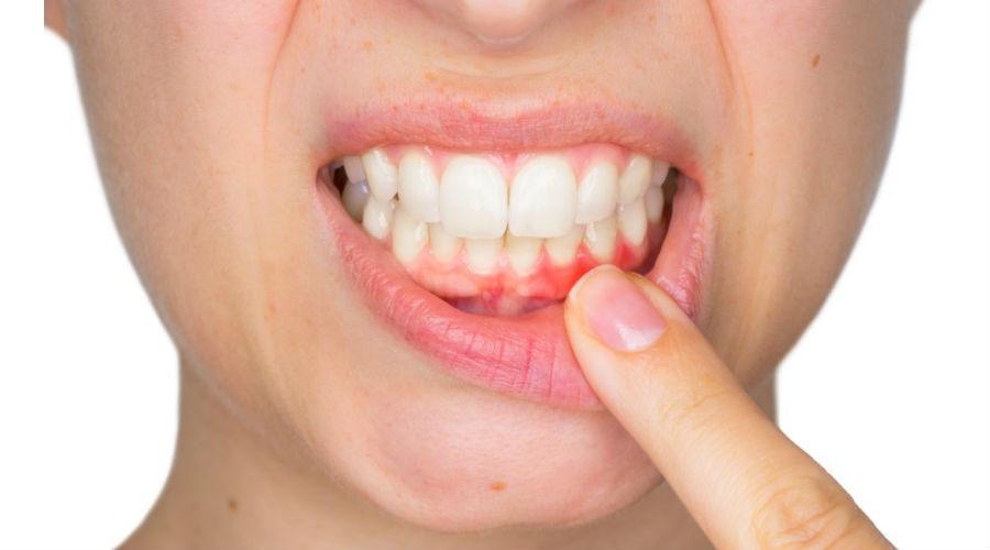Encías Inflamadas Dentista Monterrey